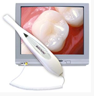 Intraoral Camera equipment at The Dentists at North Cypress