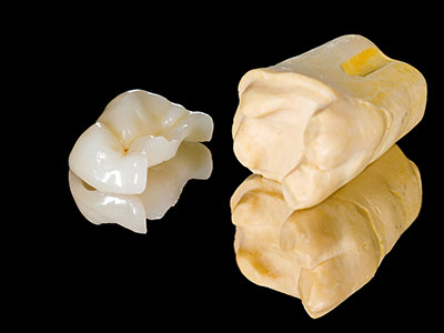 Dental inlays and onlays by dentist in Cypress, TX.